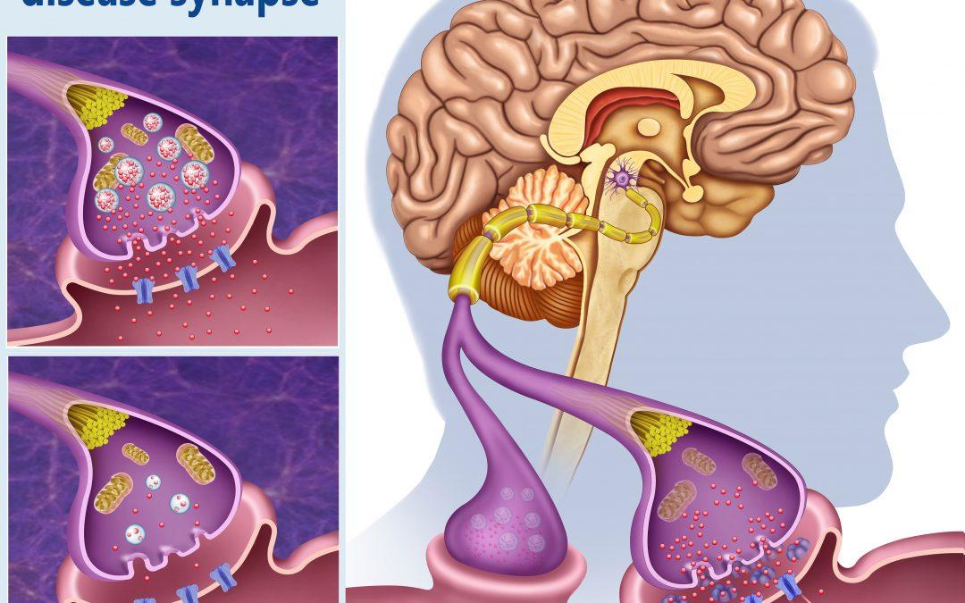 Sintomi della malattia di Parkinson e cause