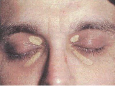 Xantelasma-occhi