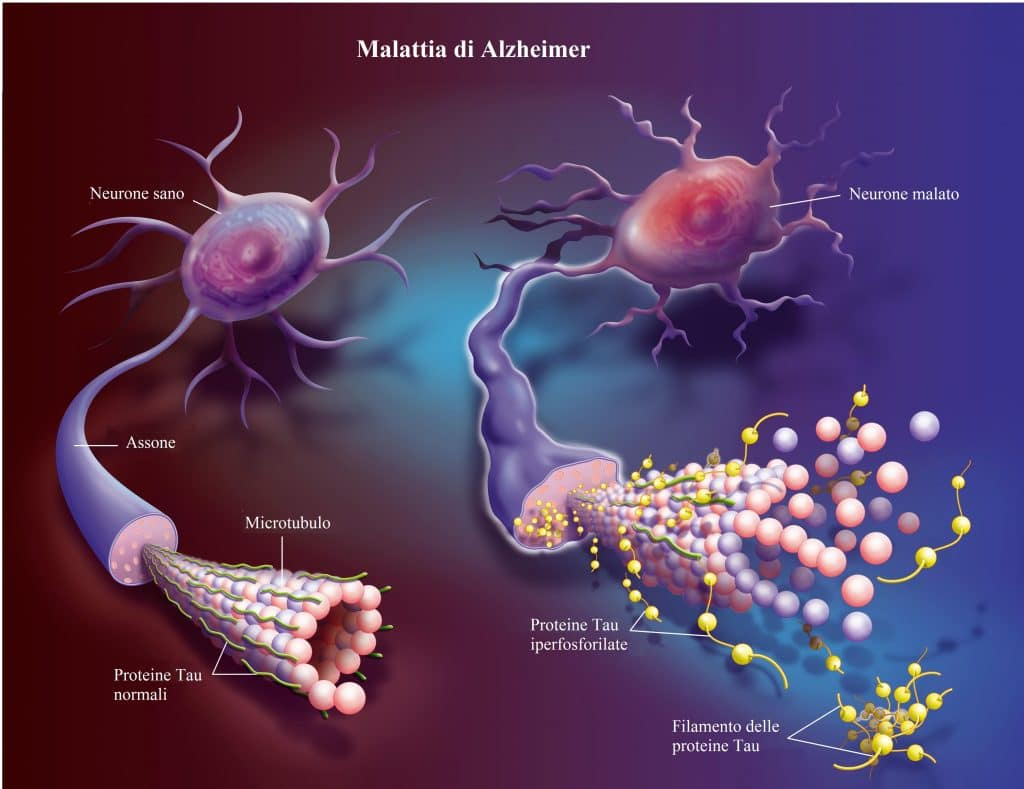 Alzheimer.morbo,malattia,proteine tau,demenza