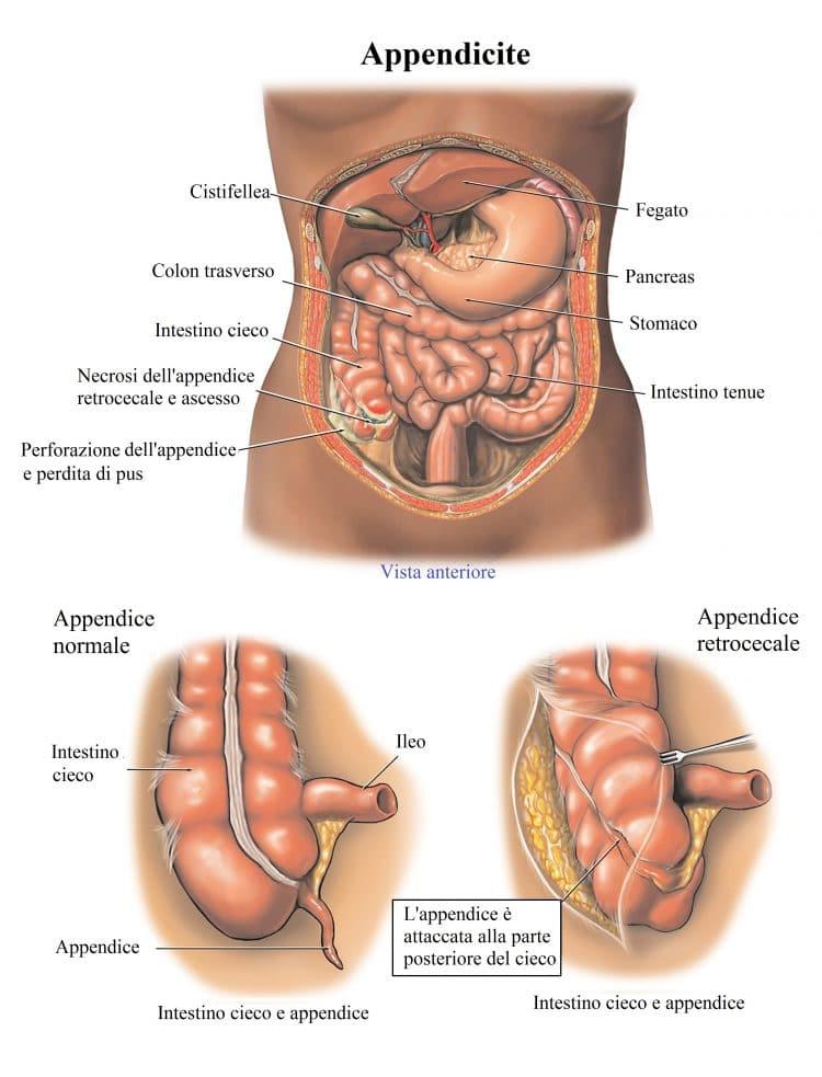appendice,infiammata,appendicite