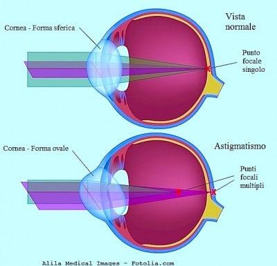 Astigmatismo agli occhi e laser