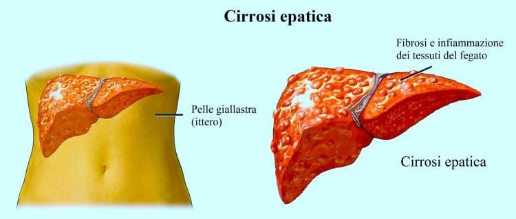 cirrosi epatica,ittero