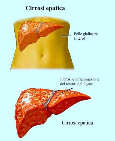 Cirrosi epatica,fegato,ittero