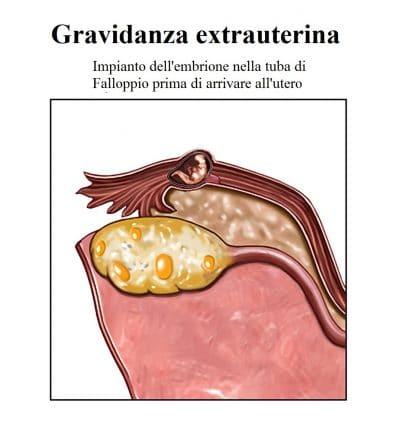 Gravidanza ectopica,tube,falloppio,embrione