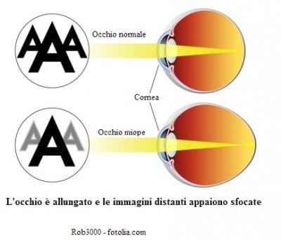 Miopia agli occhi e laser