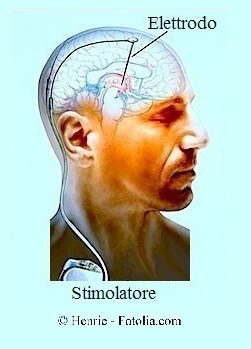 neuromodulatore,parkinson,intervento chirurgico