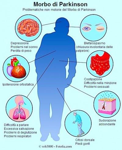 Sintomi del Morbo di parkinson e cause