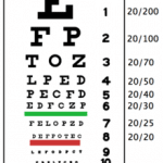 tavola optometrica,tabella snellen