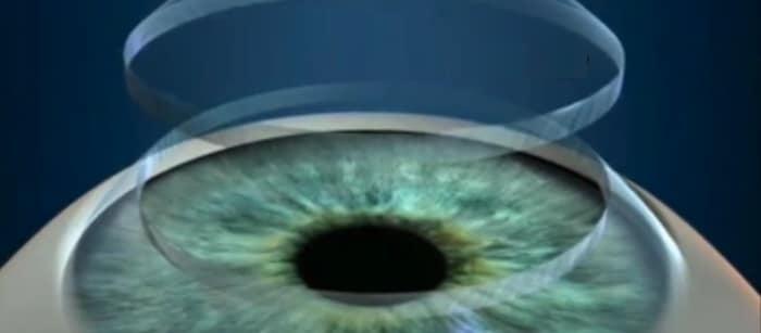 trapianto di cornea,donatore,occhio