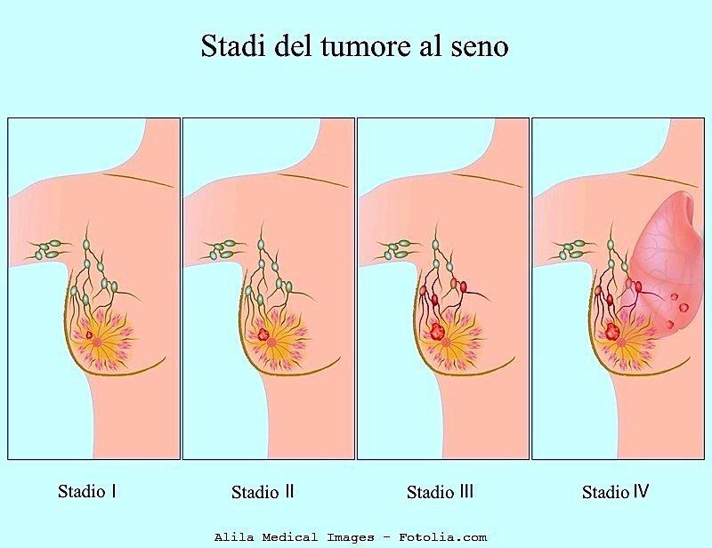 Carcinoma alla mammella,tumore al seno,linfonodi