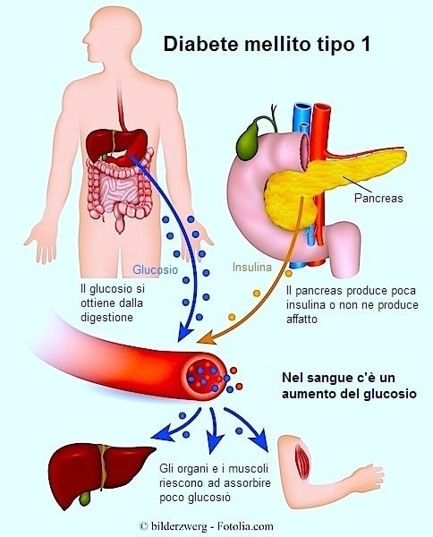 Diabete di tipo I,insulina,pancreas