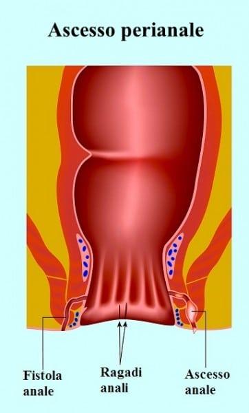 Ascesso perianale - sintomi e intervento chirurgico