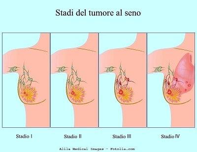 Carcinoma alla mammella