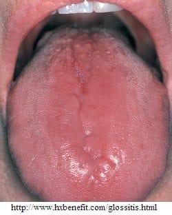 Glossite della lingua
