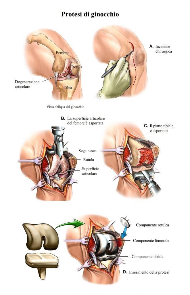intervento-chirurgico di protesi di ginocchio,tricompartimentale