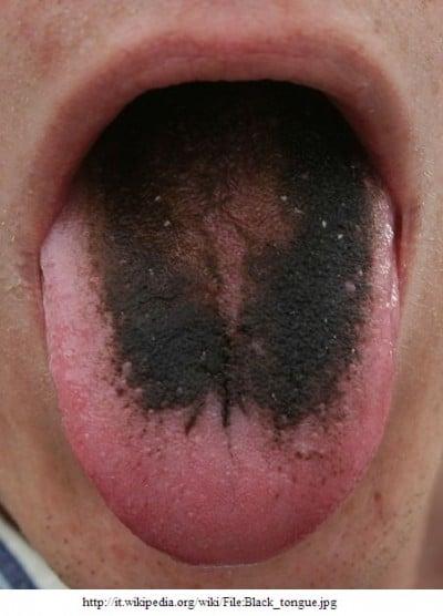 Lingua nera o rossa