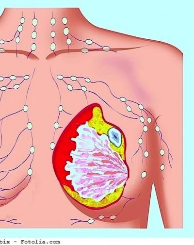 Tumore al seno,carcinoma,mammella