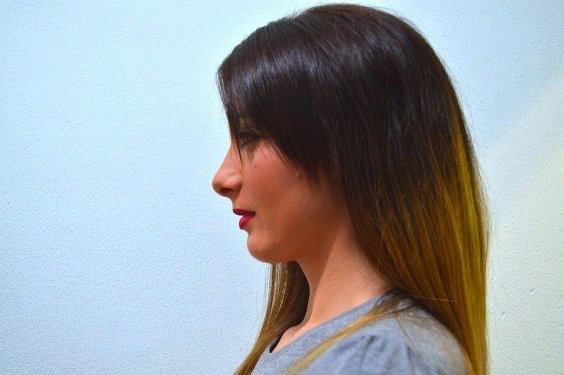 Retrazione del mento,rettilinizzazione del collo