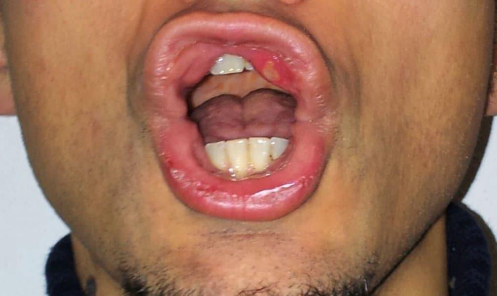 Afte in bocca,afta,lingua,labbro