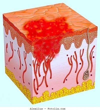 Bruciore sulla pelle