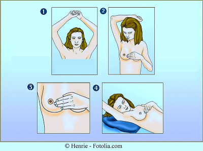 Autopalpazione del seno,posizioni,braccio,seno,sdraiata