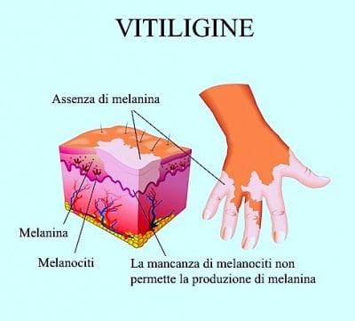 Cure per la vitiligine