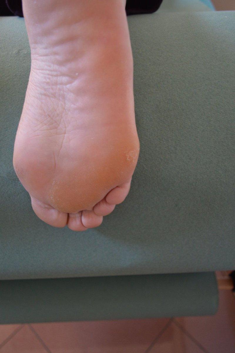 Dolore Alle Piante Dei Piedi : Calli ai piedi e duroni rimedi naturali per eliminarli