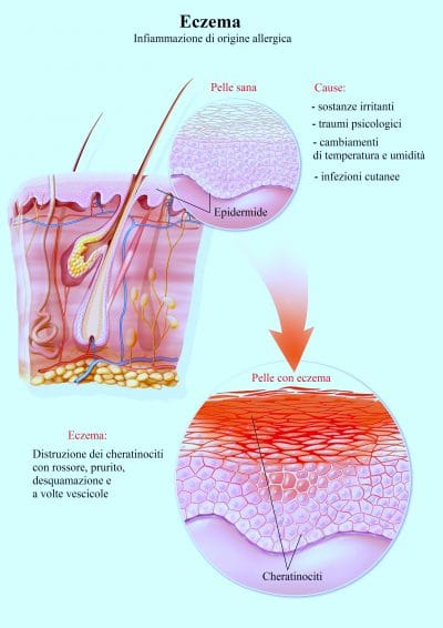 Eczema,dermatite,infiammazione
