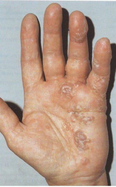 Eczema secco sulle dita di mani