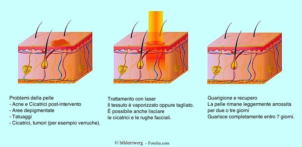 laser-per-acne