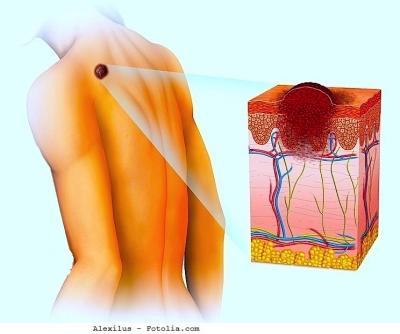 Melanoma della pelle