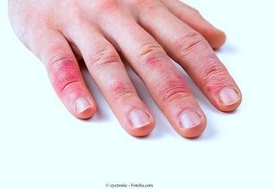 Prurito sulla pelle