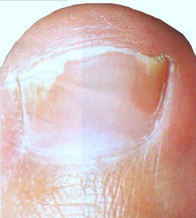 Cura di eczema di dermatite propolis