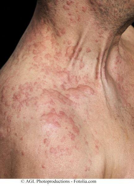 La descrizione di dermatite atopic a bambini