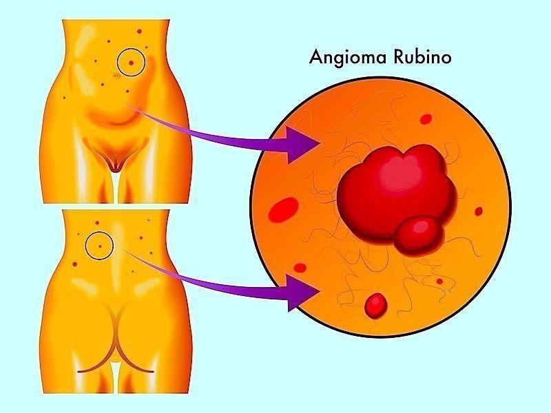 angioma rubino,macchie rosse,pelle