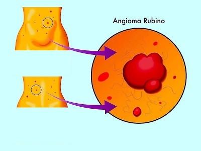 Macchie rosse,pelle,angioma rubino
