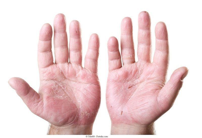 Mani,dermatite,contatto