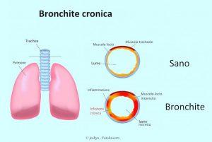 Bronchite,infiammazione,bronchi