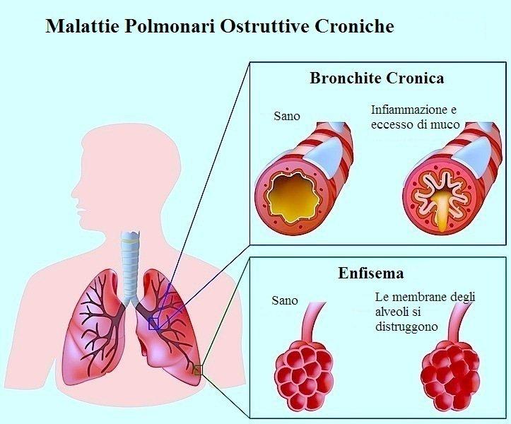 Bronchite,acuta,cronica,bronchi,alveoli