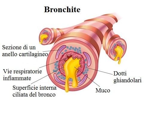Bronchite,vie respiratorie,muco,infiammazione