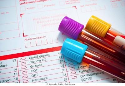 Esami del sangue - analisi