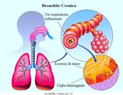 Sintomi della bronchite