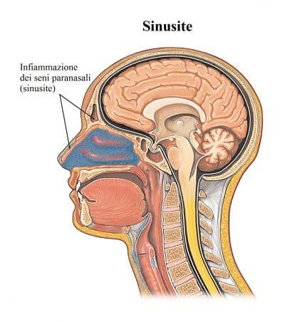 sinusite,infiammazione seni paranasali,congestione nasale