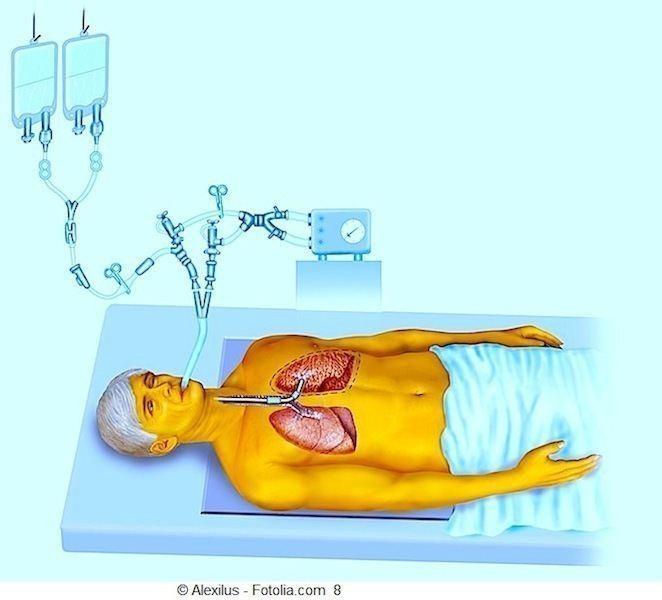 paziente,allettato,respiratore,ricovero,ospedale