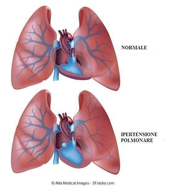 Ipertensione,polmone,polmonare