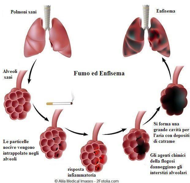 Enfisema polmonare,fasi,stadio,alveolo,fumo