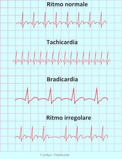 Battito cardiaco accelerato