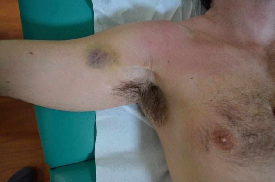 Dolori con sinistro a una parte di un collo e una spalla