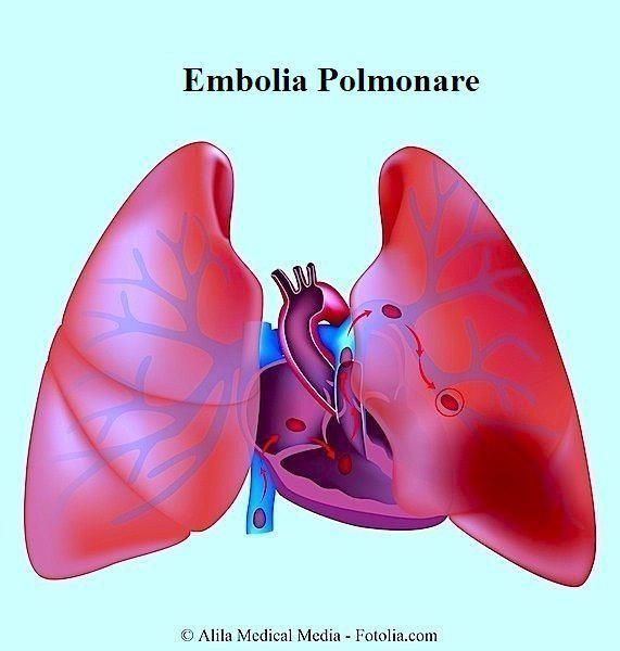 Embolia polmonare,polmoni,bronchi