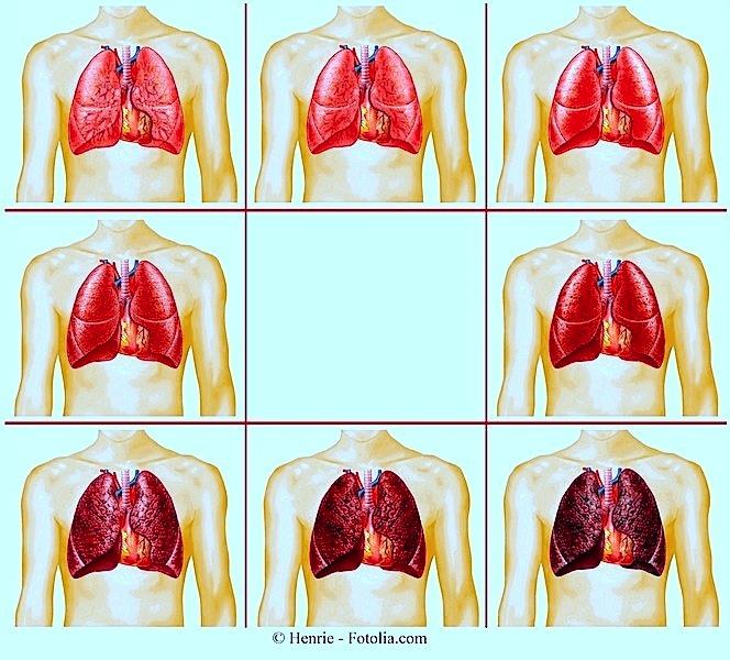 I polmoni di anni sono sgomberati dopo ha smesso di fumare